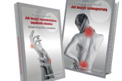 Osteoporoza – podstępny złodziej kości. Jak leczyć osteoporozę. Poradnik dla chorych